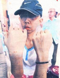 Encik Tung Wee Jie: Menunjukkan keadaan tangannya yang 'penuh' dengan gigitan nyamuk